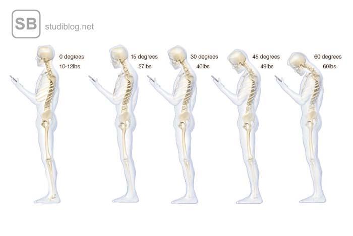 Verschiedene Haltungen der Halswirbelsäule
