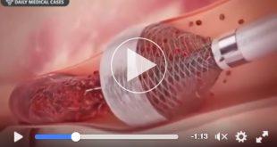 Beitragsbild zum Video in welchem ein Blutpfropf mit einer Vakuummethode entfernt wird