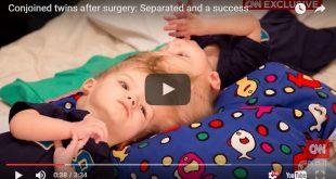 Siamesische Zwillinge nach 27-Stunden-Operation getrennt