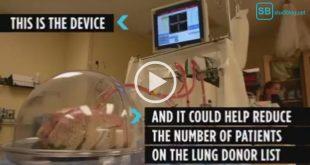 Organspende: Neues Gerät bei Lungentransplantation