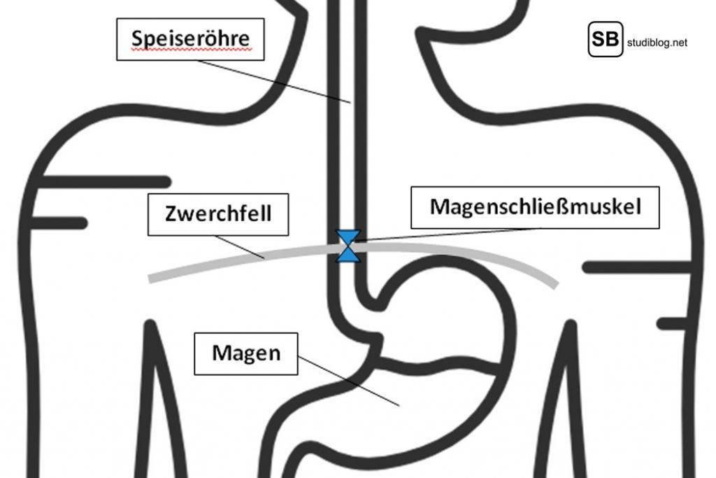 Bei Sodbrennen hat der Magenschließmuskel ein Problem - Schematischer Aufbau der Magenregion.